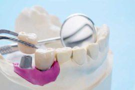 Fallo O Rechazo De Implantes