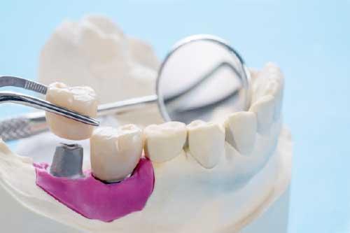 Fallo O Fracaso De Implantes Dentales